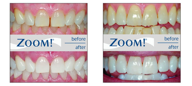 Richmond Road Dental Philips Zoom